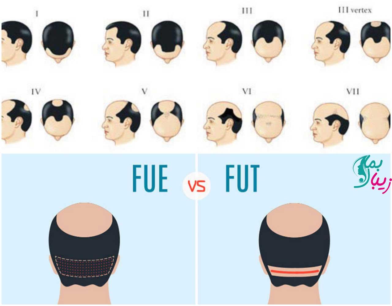 تفاوت روش کاشت مو FUE و FUT