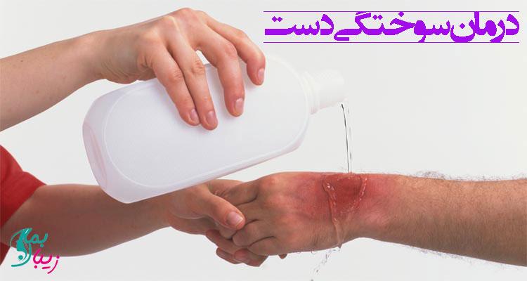 درمان سوختگی دست