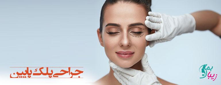 جراحی پلک پایین ، انواع روش ها و هزینه آن
