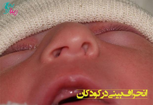 هر آنچه باید درباره انحراف بینی در کودکان بدانید