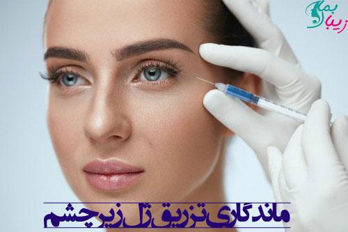 ماندگاری تزریق ژل زیر چشم و مقدار آن چقدر است ؟