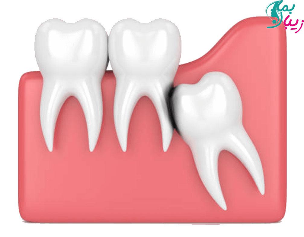 پوسیدگی دندان عقل نهفته