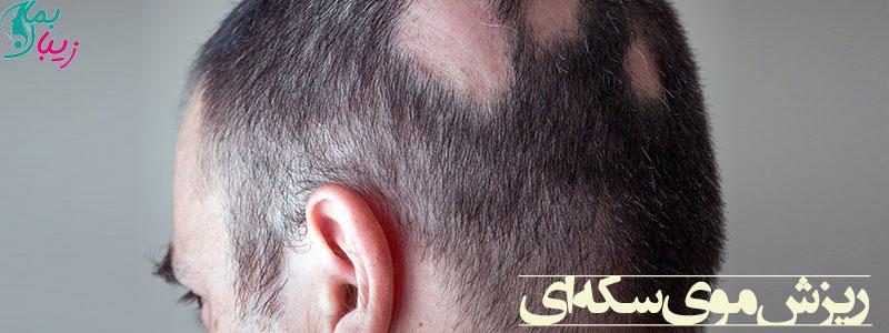ریزش موی سکه ای: علل، درمان، پیشگیری