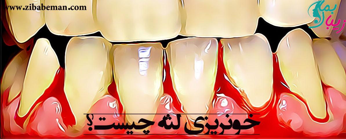 خونریزی لثه ، علائم ، علت ها و راه های درمان