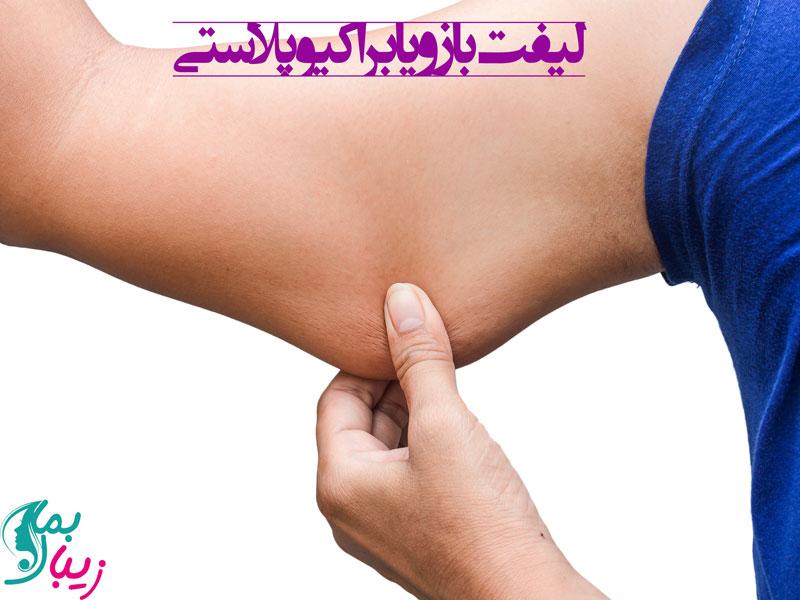 لیفت بازو یا براکیوپلاستی: از عوارض تا مراقبت های بعد از عمل