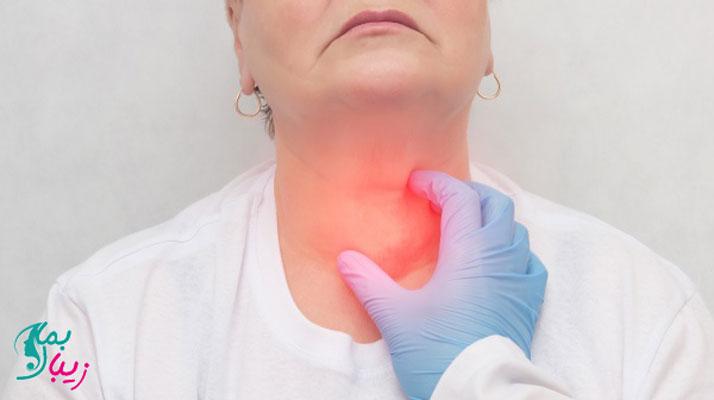 بیماری تیروئیدیت لنفوسیتی مزمن یا هاشیموتو