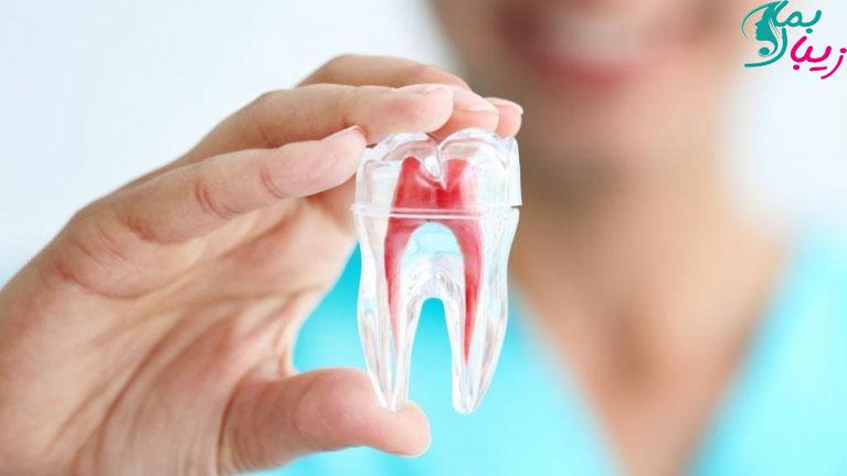 چه کسانی به عصب کشی دندان احتیاج دارند