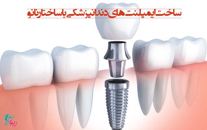 ساخت ایمپلنت های دندانپزشکی با ساختار نانو توسط محققان ایرانی