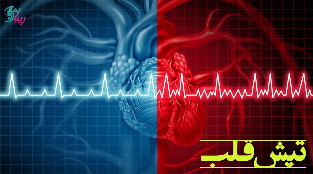 علت تپش قلب چیست و چگونه درمان می شود ؟