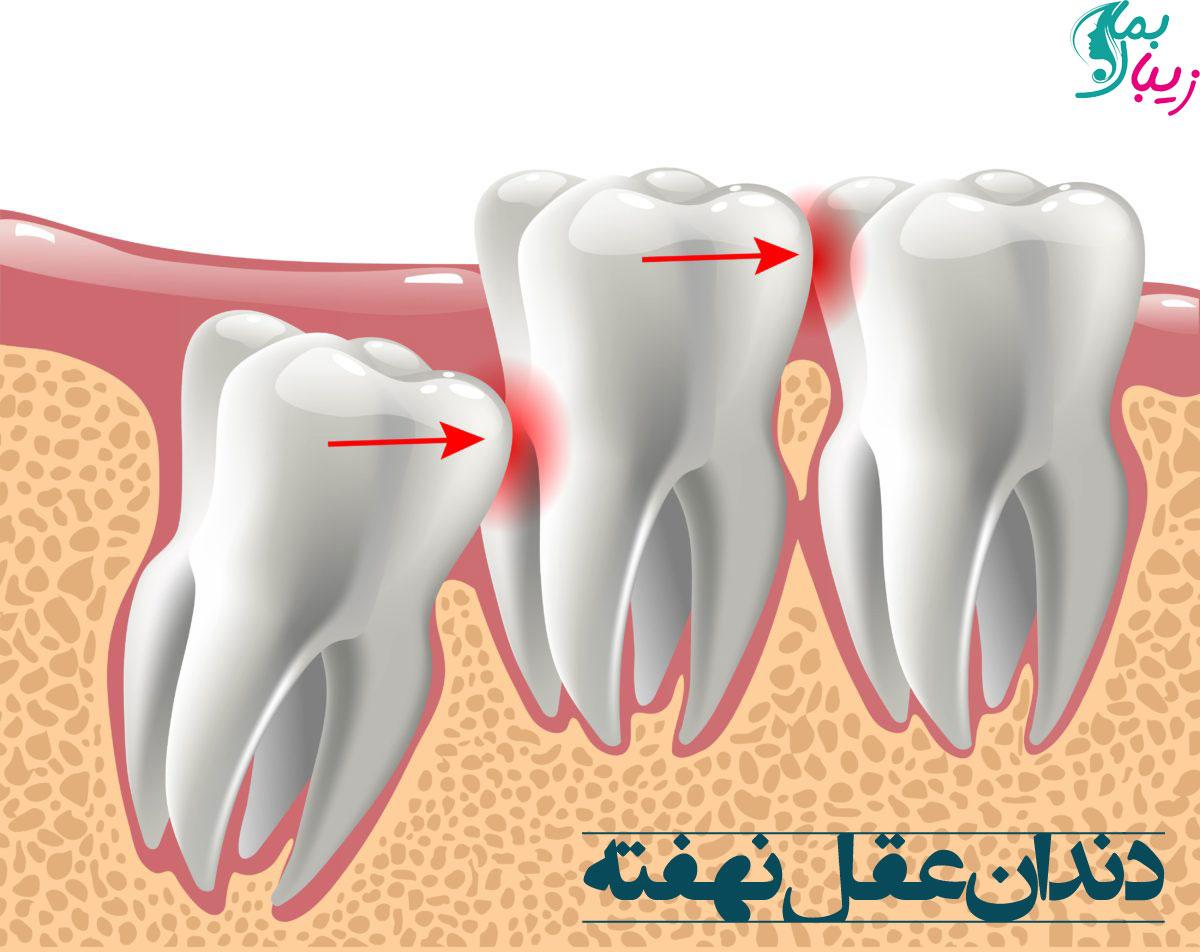 دندان عقل نهفته : علائم، خطرات، روش درمان