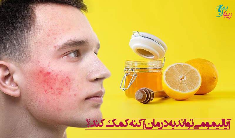 آیا لیمو می تواند به درمان آکنه کمک کند؟