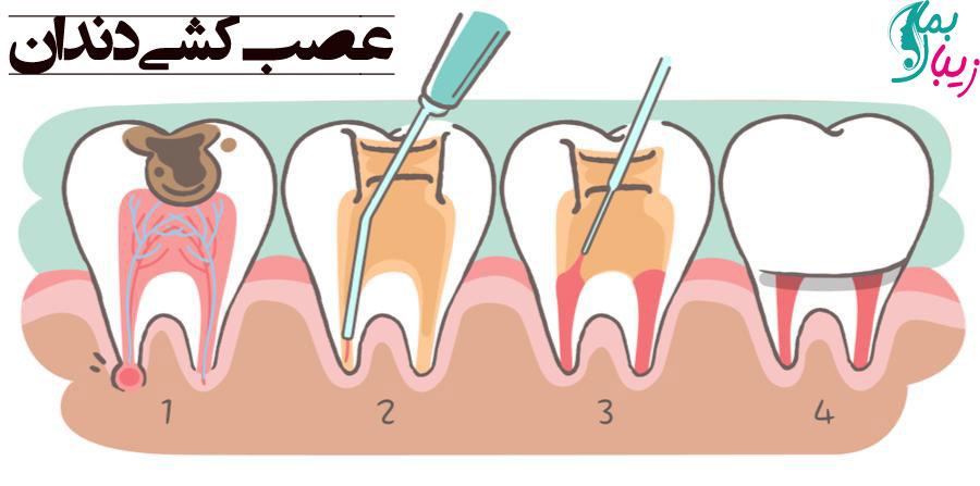 عصب کشی دندان چیست و چه کسانی به آن نیاز دارند؟
