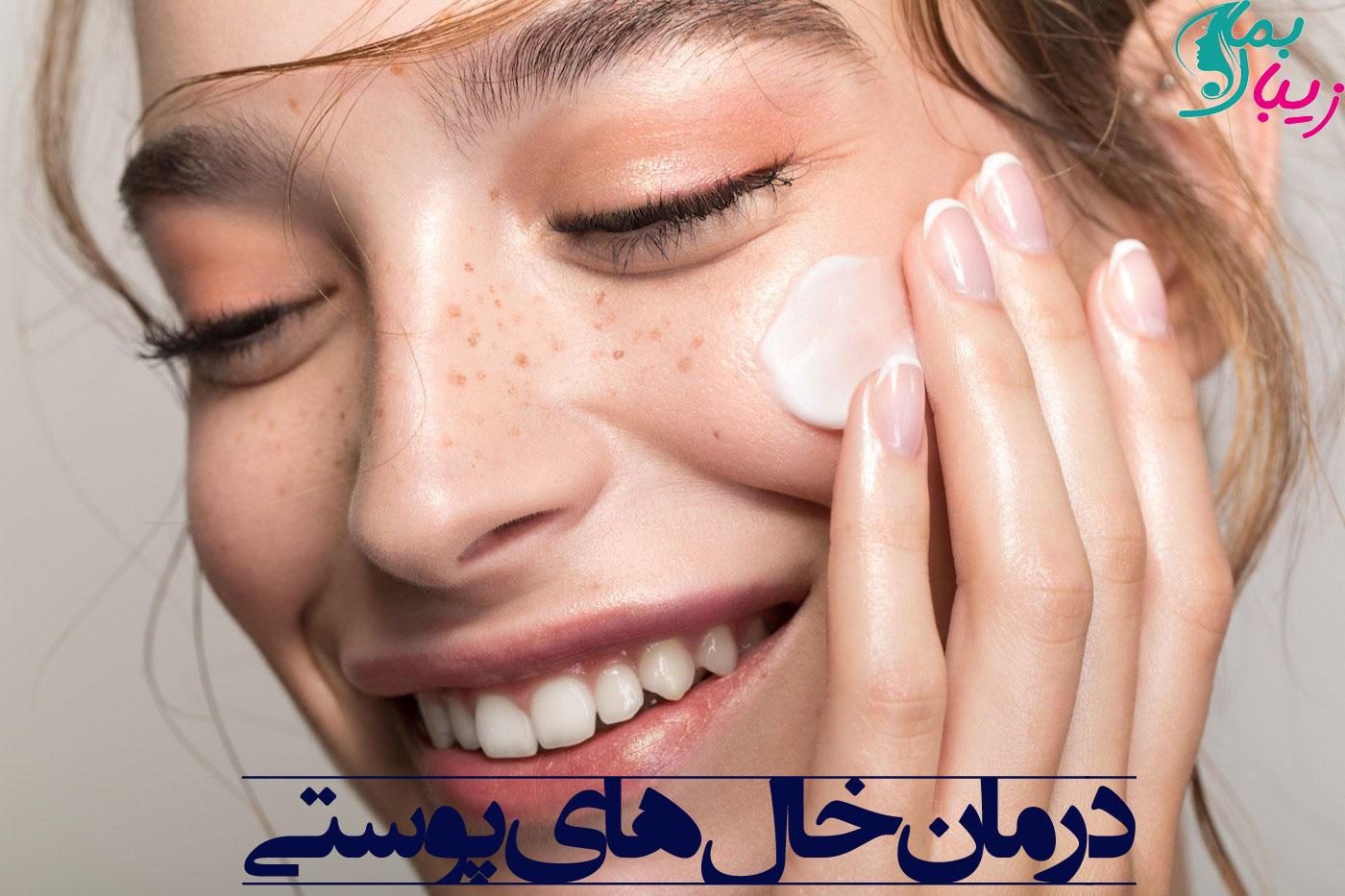 روش های بی نظیر برای درمان خال های پوستی