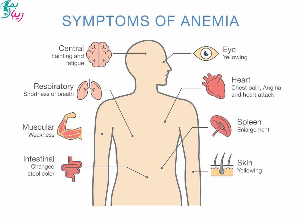 این علائم کم خونی در مردان و زنان را جدی بگیرید