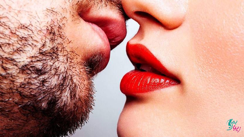 بیماری بوسه