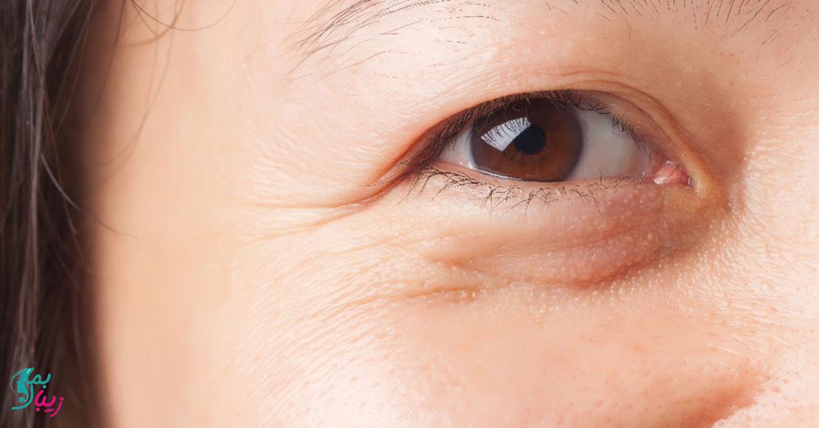 پف زیر چشم