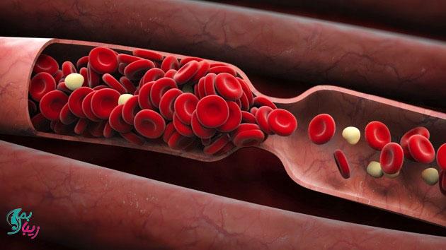 درمان لخته خون