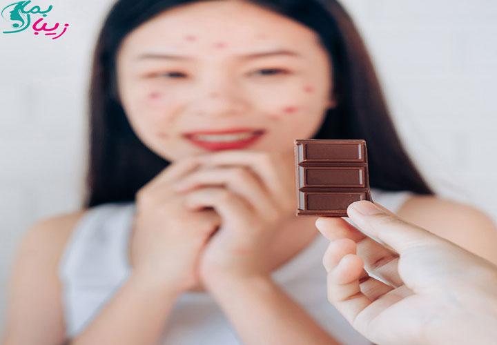 شکلات باعث جو زدن صورت و تشدید آکنه میشود