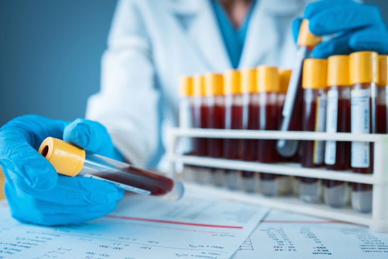 نحوه خواندن برگه آزمایش خون چگونه است | آموزش کامل