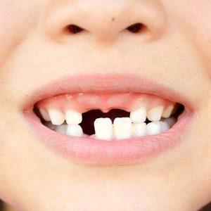 مشکلات بهداشت دهان و دندان در کودکان