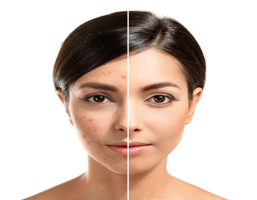 کراتوز اکتینیک از عوارض برنزه کردن پوست