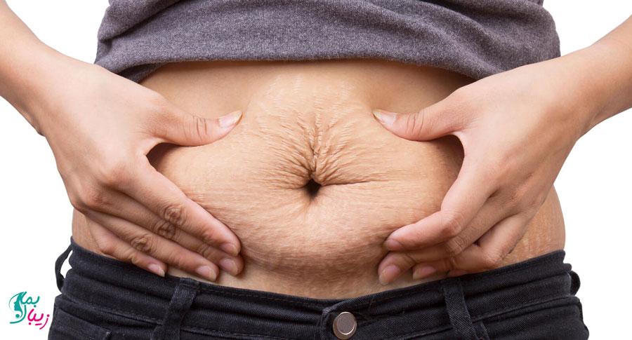 شل شدن پوست بعد از بارداری