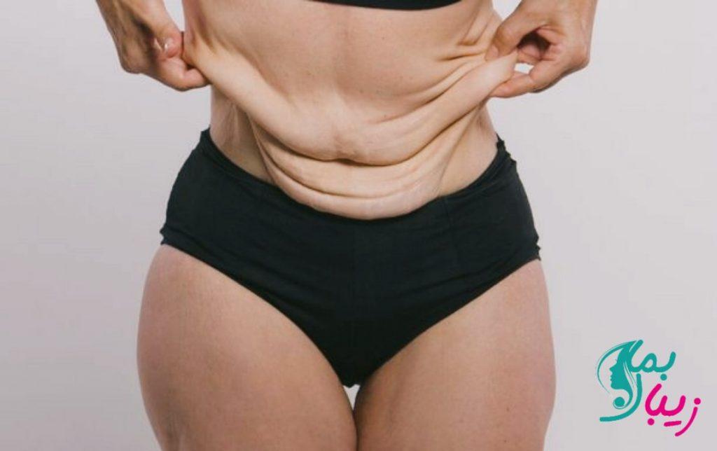 روش های سفت کردن پوست بعد از لاغری