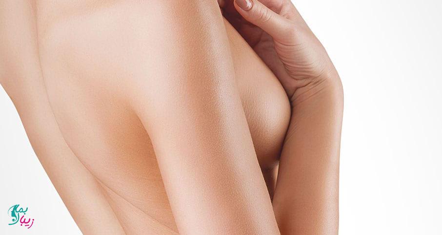 خطرات عمل ماموپلاستی