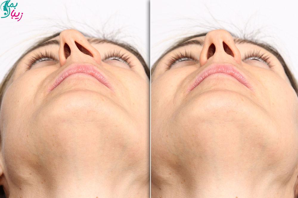 دوره نقاهت جراحی انحراف بینی