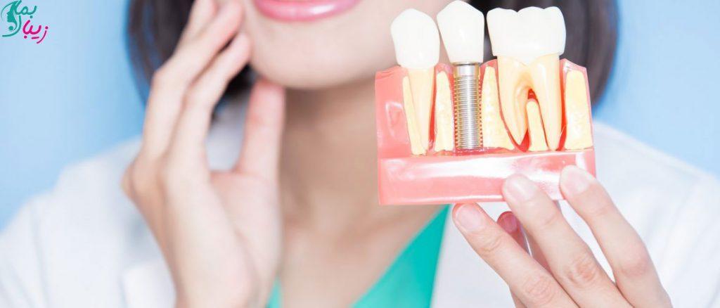 سه مرحله جراحی ایمپلنت دندان