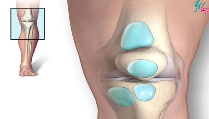 التهاب بورس زانو | درد مفصل ران و پا