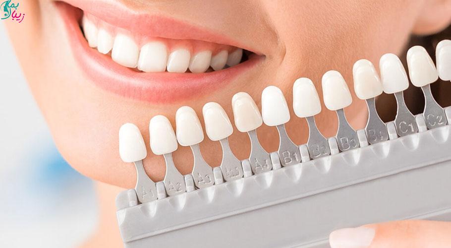 آیا لمینت دندان عوارض دارد