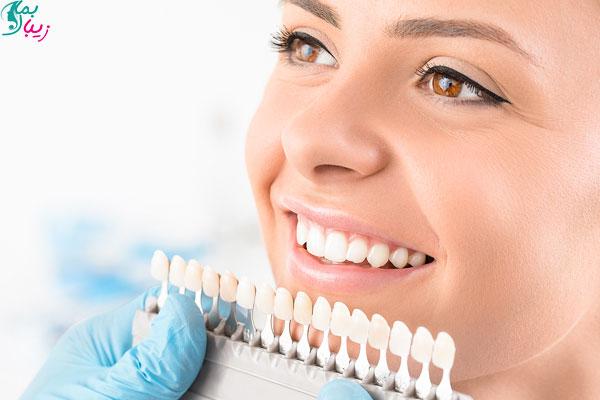 مراقبت های بعد برای لمینت دندان