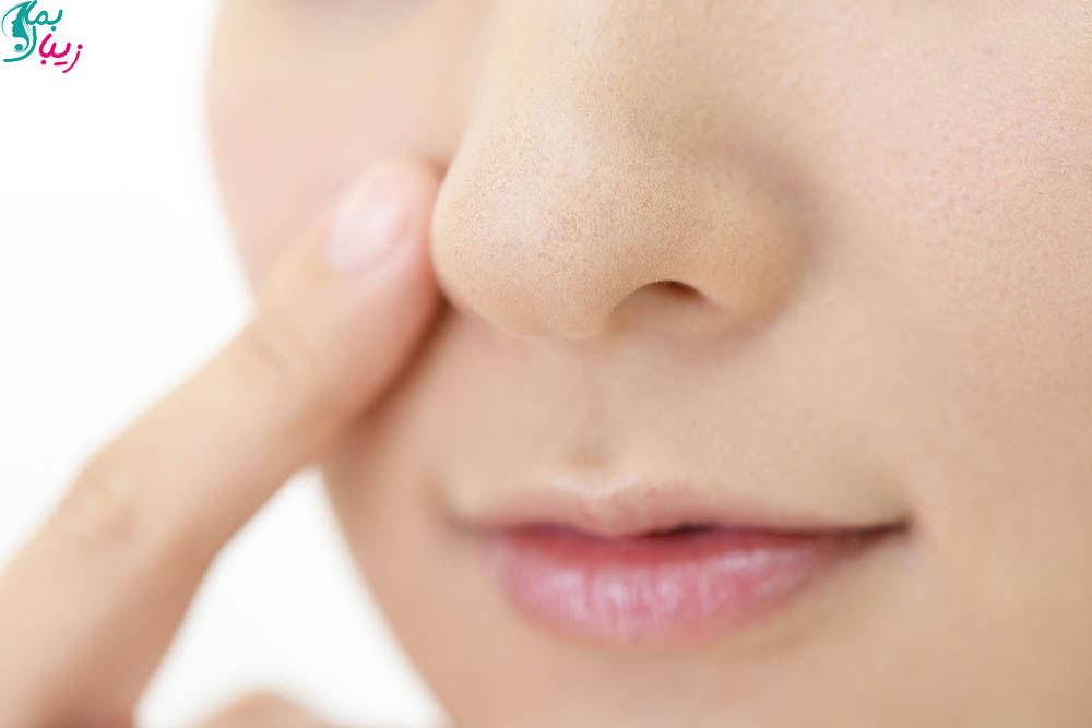 درمان خشکی و پوست پوست شدن اطراف بینی