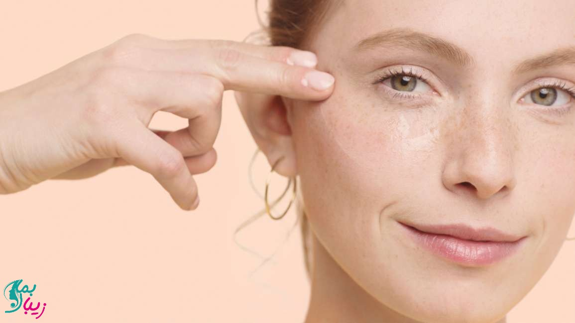 تاثیر ویتامین c بر رفع لک و تیرگی پوست