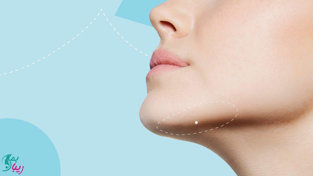 افتادگی پوست در اثر کاهش وزن و لاغری