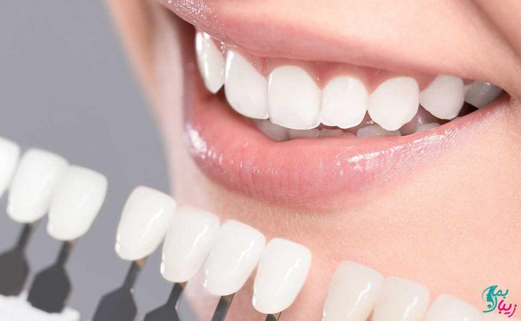 ونیر دندان چیست