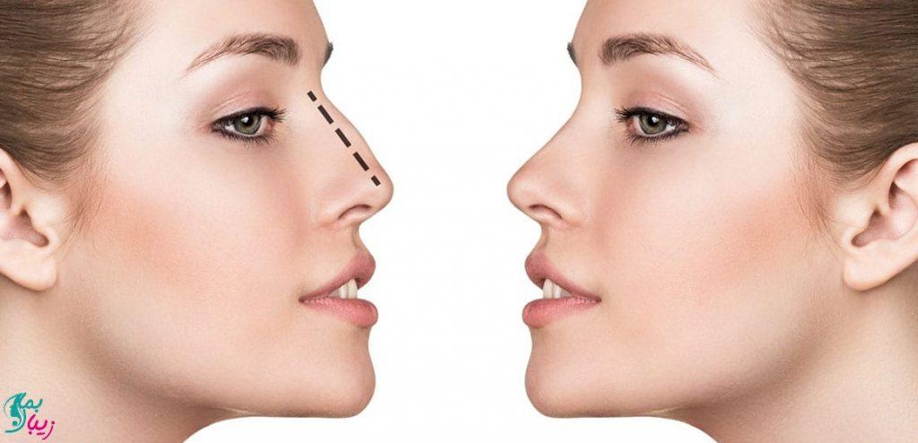 جراحی بسته بینی