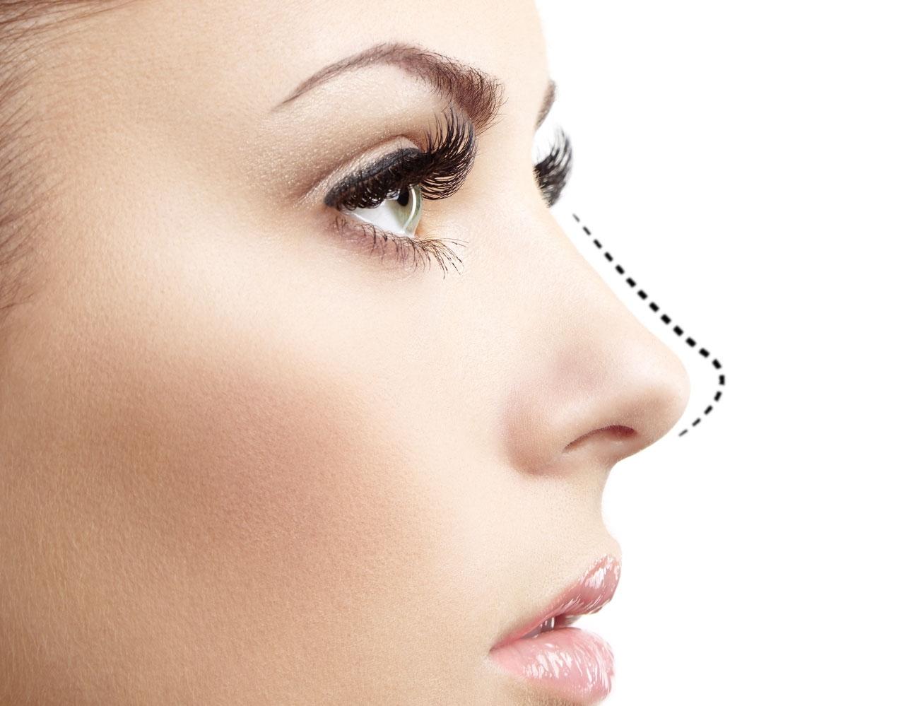 عمل بسته بینی