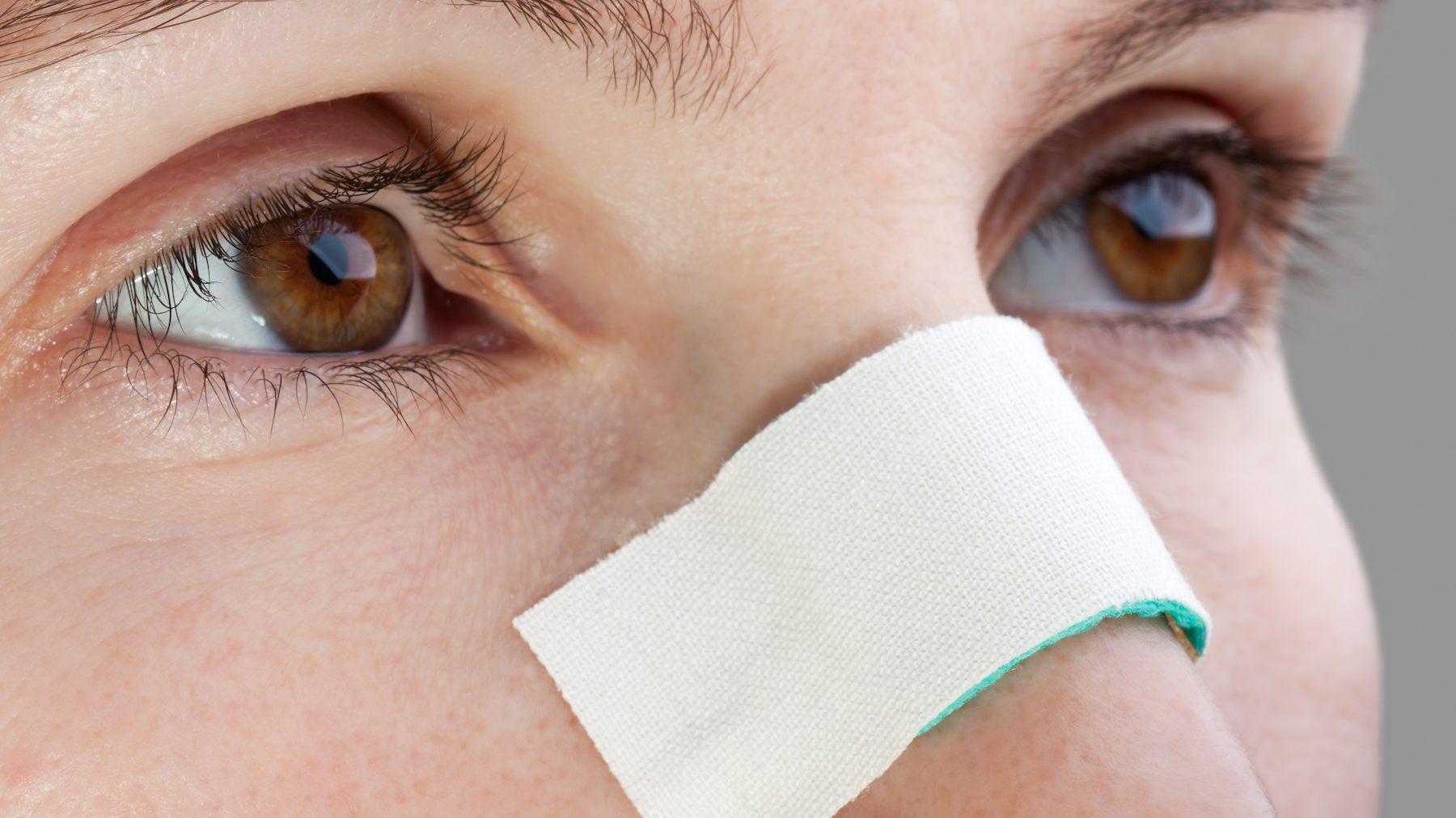 چرا بعد از عمل جراحی بینی چسب میزنیم؟