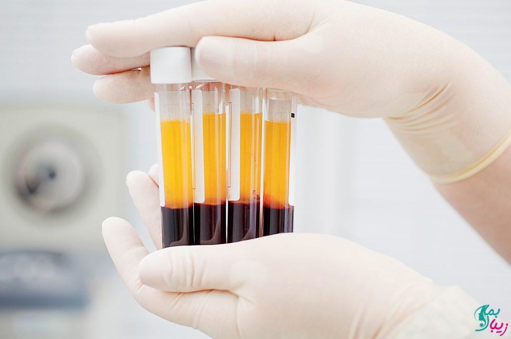 پلاسما درمانی برای درمان کرونا