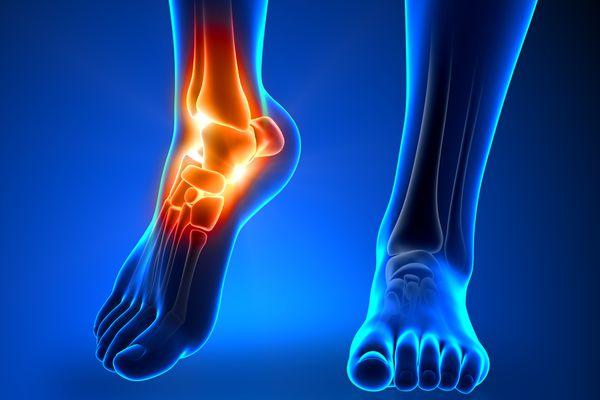 درد در ساق پا