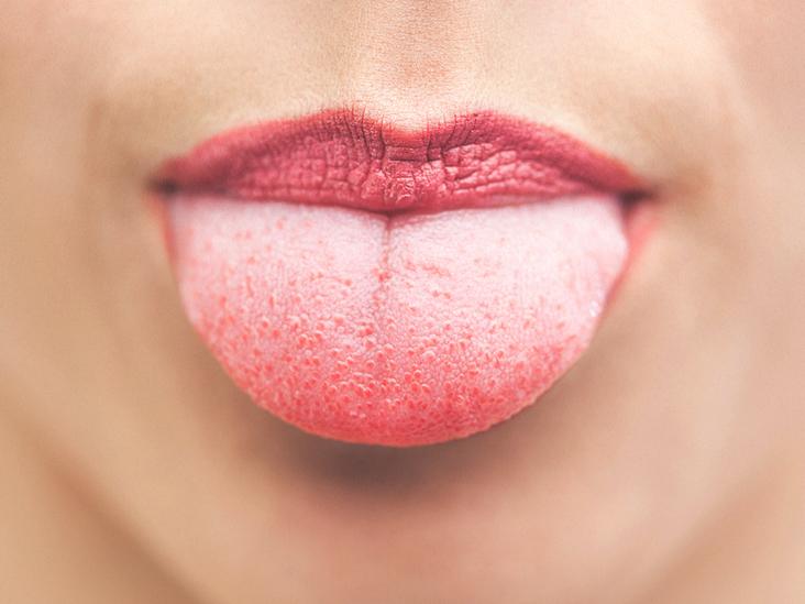 علت لکه روی زبان