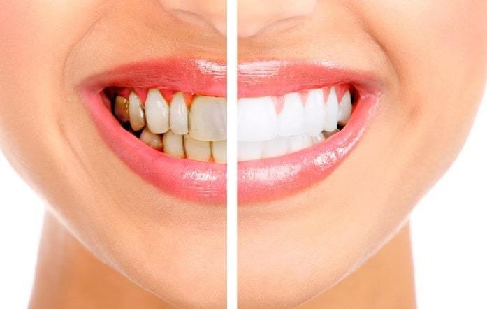 روش های سفیدی دندان