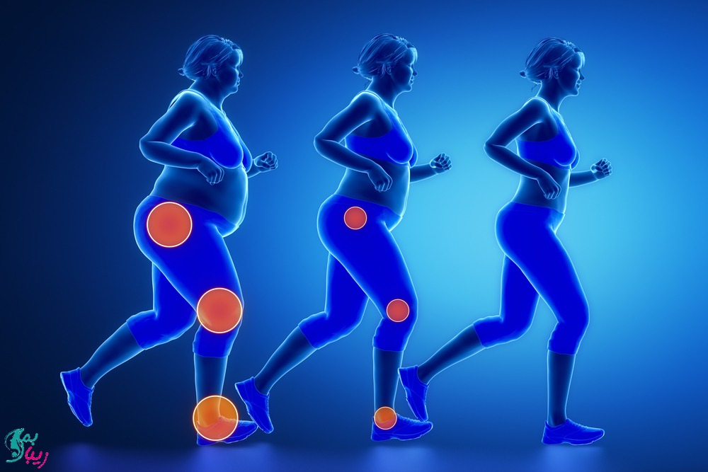 ارتباط چاقی و زانو درد