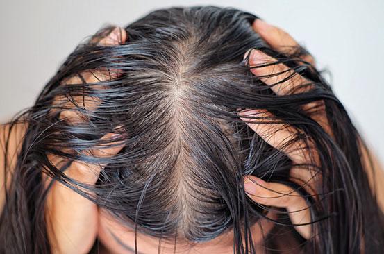 چگونه از شر موهای چرب خلاص شویم