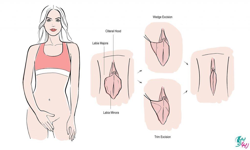 لابیاپلاستی لیزری واژن