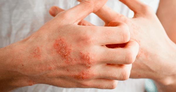 آیا اگزما درمان قطعی دارد
