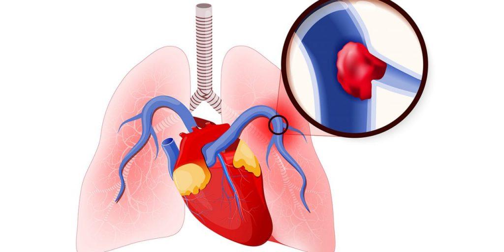 خطر آمبولی ریه بعد از جراحی