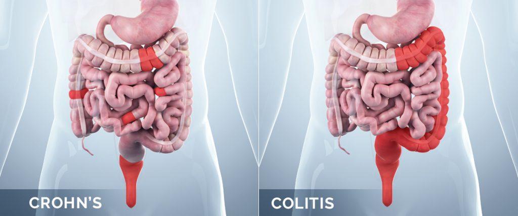 بیماری کرون در مقابل کولیت اولسراتیو